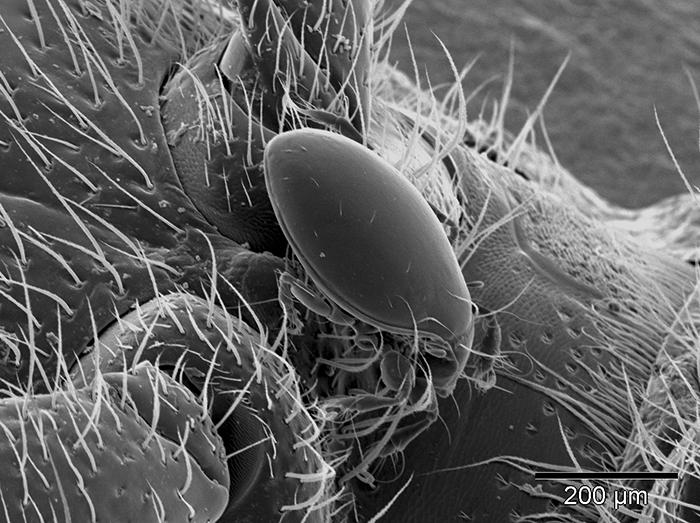 Milbe, mit einem Rasterelektronenmikroskop fotografiert